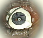 suction plate and microkeratome on eye